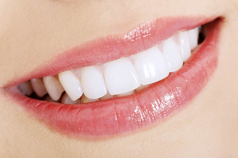 Cosmetic Dentistry in Woodland