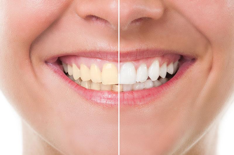 Teeth Whitening in Woodland