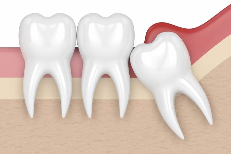 Orthodontics in Woodland